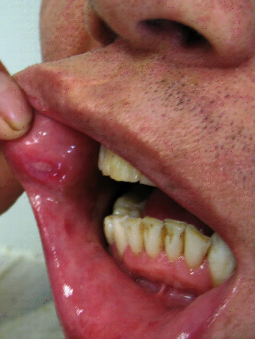 Folliculitis - WebMD