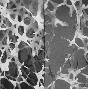 Osteoporose Bone_normal_and_degraded_micro_structure