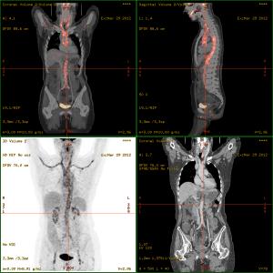 Vasculitis_FDG_PET-CT