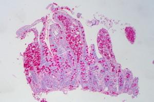 Whipples_Disease,_PAS_(6881958655)