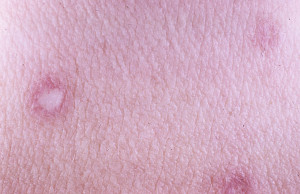 By Madhero88 (http://www.dermnet.com/Degos-Disease/picture/23124)