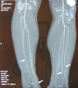 Buerger's_Disease.M.V.561