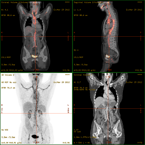 Vasculitis_FDG_PET-CT