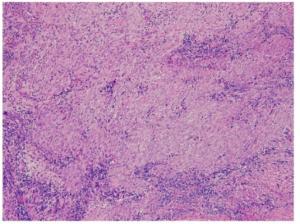 IgG4 relatert sykdom