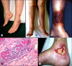 Kryoglobulinemisyndromet