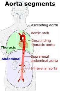 Aorta angripes ved Isolert aortitt