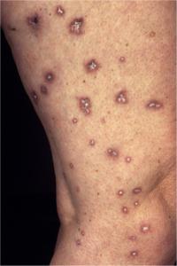 Degos syndrom