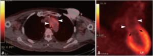 Isolert aortitt
