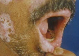 Diskoid lupus