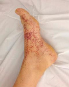 PAN i huden