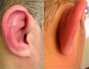 Polykondritt med rødt øre