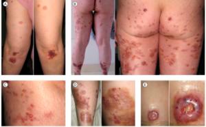 Revmatoid neutrofil dermatitt