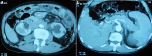 Retroperitoneal fibrose