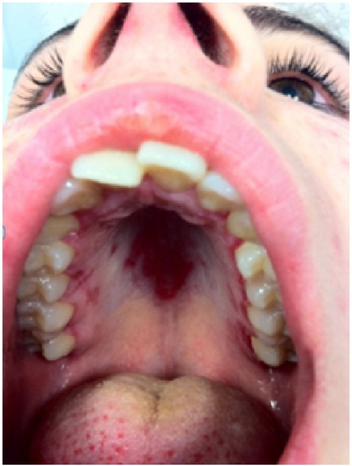 afte sår i munnen