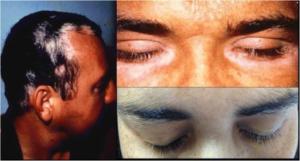 Voght-Koyanagi-Harada Syndrom
